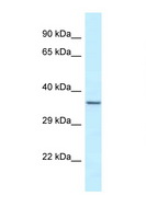 EXOSC9 / p5 Antibody - EXOSC9 antibody Western blot of Fetal Heart lysate. Antibody concentration 1 ug/ml.  This image was taken for the unconjugated form of this product. Other forms have not been tested.