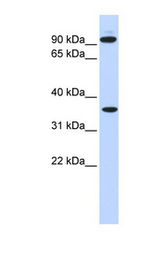 EXT2 antibody Western blot of 721_B cell lysate. This image was taken for the unconjugated form of this product. Other forms have not been tested.