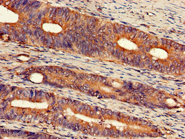 Immunohistochemistry of paraffin-embedded human colon cancer using EXT2 Antibody at dilution of 1:100