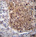 EXTL3 Antibody immunohistochemistry of formalin-fixed and paraffin-embedded human esophageal carcinoma followed by peroxidase-conjugated secondary antibody and DAB staining.