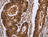 Immunohistochemistry of Human brain using EXTL3 Polyclonal Antibody at dilution of 1:30.