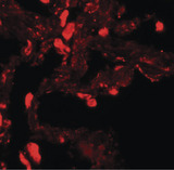 Immunofluorescence of EZH1 in human lung tissue with EZH1 antibody at 20 ug/ml.