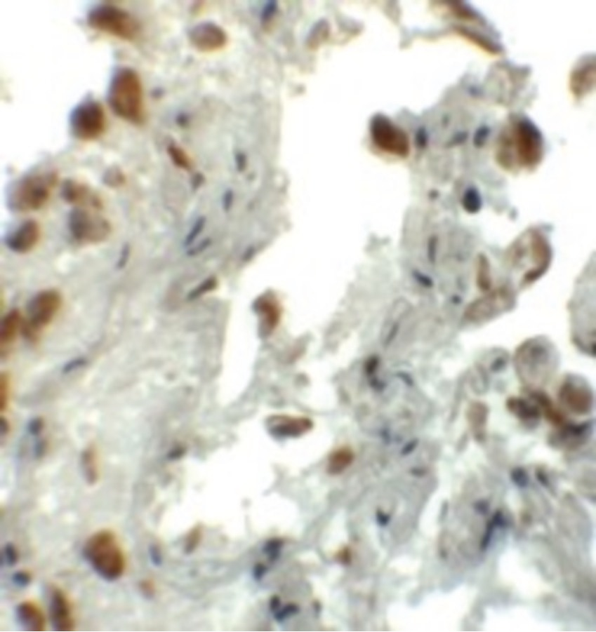 Immunohistochemistry of EZH1 in human lung tissue with EZH1 antibody at 5 ug/ml.