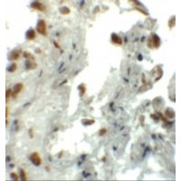 Immunohistochemistry of EZH1 in human lung tissue with EZH1 antibody at 5 µg/mL.