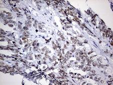 EZH2 Antibody - IHC of paraffin-embedded Adenocarcinoma of Human ovary tissue using anti-EZH2 mouse monoclonal antibody. (Heat-induced epitope retrieval by 1 mM EDTA in 10mM Tris, pH9.0, 120°C for 3min).