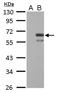 Factor X antibody detects F10 protein by Western blot analysis. A. 30 ug 293T whole cell lysate/extract. B. 30 ug whole cell lysate/extract of human F10-transfected 293T cells. 10 % SDS-PAGE. Factor X antibody dilution:1:5000