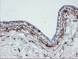 IHC of paraffin-embedded Human breast tissue using anti-F13A1 mouse monoclonal antibody.