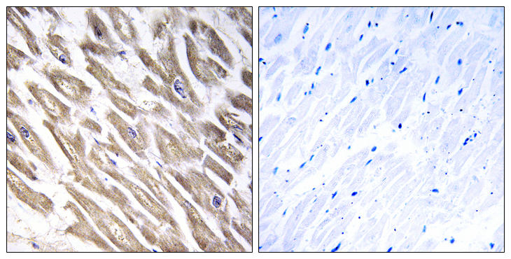 F13B / TGase Antibody - Immunohistochemistry analysis of paraffin-embedded human heart tissue, using F13B Antibody. The picture on the right is blocked with the synthesized peptide.