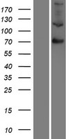F13B / TGase Protein - Western validation with an anti-DDK antibody * L: Control HEK293 lysate R: Over-expression lysate