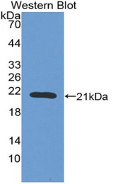 Western blot of recombinant F2 / Prothrombin / Thrombin.