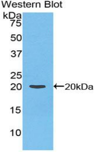 F2 / Prothrombin / Thrombin Antibody - Western blot of recombinant F2 / Prothrombin / Thrombin.