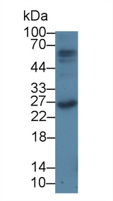 F2 / Prothrombin / Thrombin Antibody - Western Blot; Sample: Rat Thymus lysate; ;Primary Ab: 100 Mouse Anti-Rat PTHrP Antibody;Second Ab: 0.2µg/mL HRP-Linked Caprine Anti-Mouse IgG Polyclonal Antibody;