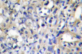 IHC of Prothrombin (G724) pAb in paraffin-embedded human liver carcinoma tissue.