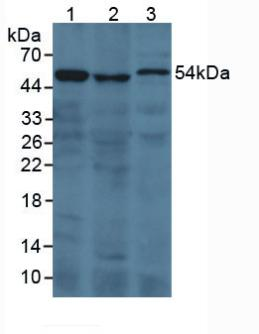 F2 / Prothrombin / Thrombin Antibody - Western Blot; Sample: Lane1: Human 293T Cells; Lane2: Porcine Kidney Tissue; Lane3: Rat Serum.