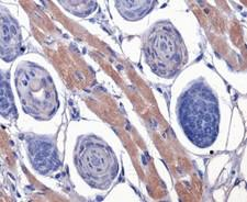 F2R / Thrombin Receptor / PAR1 Antibody - Immunohistochemistry: Thrombin Receptor Antibody (N2-11) - IHC of Thrombin Receptor on mouse skin.  This image was taken for the unconjugated form of this product. Other forms have not been tested.