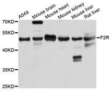 F2R / Thrombin Receptor / PAR1 Antibody - Western blot analysis of extracts of various cell lines.