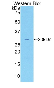 Western blot of recombinant F5 / Factor Va.  This image was taken for the unconjugated form of this product. Other forms have not been tested.