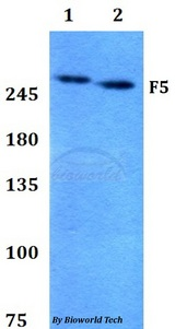 Western blot of F5 antibody at 1:500 dilution. Lane 1: HEK293T whole cell lysate. Lane 2: PC12 whole cell lysate.