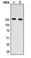 Western blot analysis of Factor V HC expression in HEK293T (A); PC12 (B) whole cell lysates.