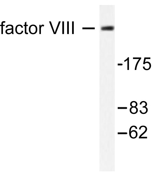 Western blot of. Factor VIII (S2194) pAb in extracts from HUVEC cells.