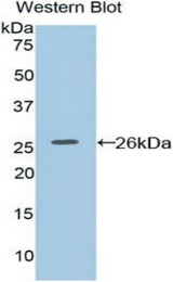 Western blot of recombinant F8A1 / HAP40.  This image was taken for the unconjugated form of this product. Other forms have not been tested.