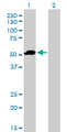 Western Blot analysis of F9 expression in transfected 293T cell line by F9 monoclonal antibody (M01), clone 2C9.Lane 1: F9 transfected lysate(51.8 KDa).Lane 2: Non-transfected lysate.