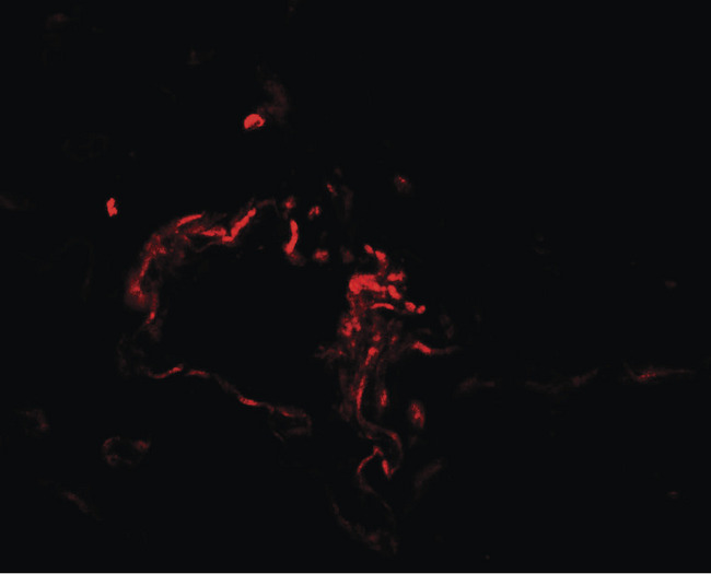 Immunofluorescence of ASCL1 in human lung tissue with ASCL1 antibody at 20 ug/ml.