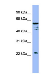 FAIM / FAIM1 antibody LS-C107753 Western blot of OVCAR-3 cell lysate.  This image was taken for the unconjugated form of this product. Other forms have not been tested.