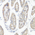 Immunohistochemistry of paraffin-embedded human stomach using PTK2 antibody at dilution of 1:100 (40x lens).