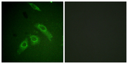 Immunofluorescence analysis of HepG2 cells, using FAK (Phospho-Ser910) Antibody. The picture on the right is blocked with the phospho peptide.