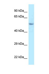Fam114a2 antibody Western blot of Mouse Pancreas lysate. Antibody concentration 1 ug/ml.  This image was taken for the unconjugated form of this product. Other forms have not been tested.