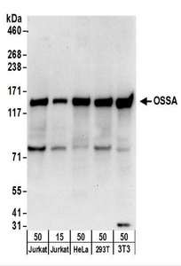 Detection of Human and Mouse OSSA by Western Blot. Samples: Whole cell lysate from Jurkat (15 and 50 ug), HeLa (50 ug), 293T (50 ug), and mouse NIH3T3 (50 ug) cells. Antibodies: Affinity purified rabbit anti-OSSA antibody used for WB at 1 ug/ml. Detection: Chemiluminescence with an exposure time of 10 seconds.