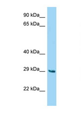 Fam122b antibody Western blot of Mouse Liver lysate. Antibody concentration 1 ug/ml.  This image was taken for the unconjugated form of this product. Other forms have not been tested.