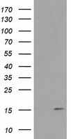 FAM127C Antibody - HEK293T cells were transfected with the pCMV6-ENTRY control (Left lane) or pCMV6-ENTRY FAM127C (Right lane) cDNA for 48 hrs and lysed. Equivalent amounts of cell lysates (5 ug per lane) were separated by SDS-PAGE and immunoblotted with anti-FAM127C.