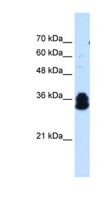 FAM134B antibody LS-C40502 Western blot of Jurkat lysate.  This image was taken for the unconjugated form of this product. Other forms have not been tested.