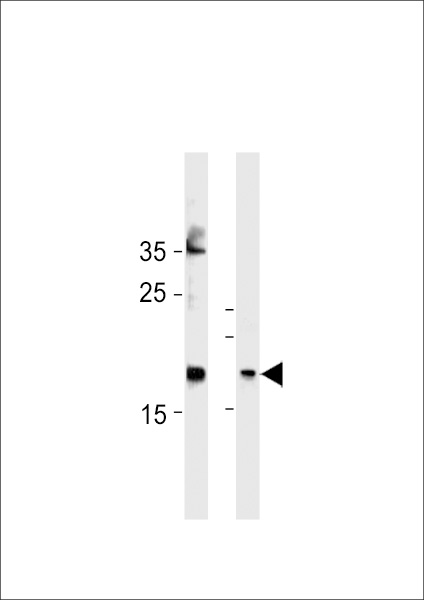 FAM159A Antibody western blot of HeLa cell line and mouse bladder tissue lysates (35 ug/lane). The FAM159A antibody detected the FAM159A protein (arrow).