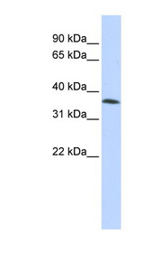 FAM164A / CGI-62 antibody Western blot of HepG2 cell lysate. This image was taken for the unconjugated form of this product. Other forms have not been tested.