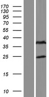FAM166B Protein - Western validation with an anti-DDK antibody * L: Control HEK293 lysate R: Over-expression lysate