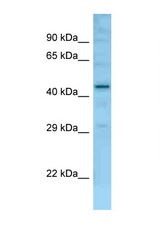 Fam170b antibody Western blot of Mouse Liver lysate. Antibody concentration 1 ug/ml.  This image was taken for the unconjugated form of this product. Other forms have not been tested.