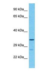 FAM189A1 Antibody - Western blot of FAM189A1 Antibody with human 293T Whole Cell lysate.  This image was taken for the unconjugated form of this product. Other forms have not been tested.