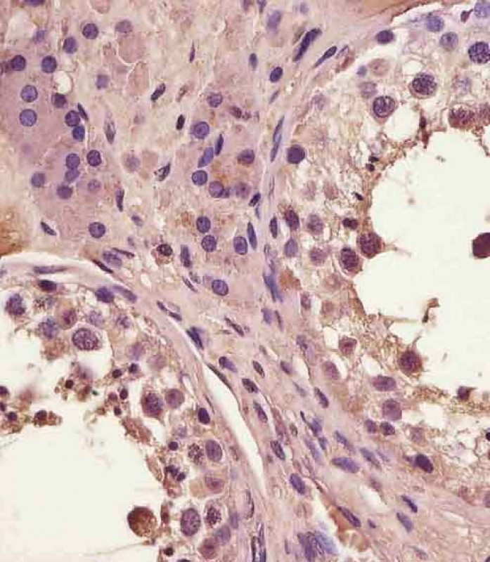 FAM3A Antibody (C-Term) staining FAM3A in human testis tissue sections by Immunohistochemistry (IHC-P - paraformaldehyde-fixed, paraffin-embedded sections). Tissue was fixed with formaldehyde and blocked with 3% BSA for 0. 5 hour at room temperature; antigen retrieval was by heat mediation with a citrate buffer (pH6). Samples were incubated with primary antibody (1/25) for 1 hours at 37°C. A undiluted biotinylated goat polyvalent antibody was used as the secondary antibody.
