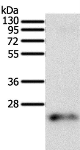 Western blot analysis of Human fetal brain tissue, using FAM3A Polyclonal Antibody at dilution of 1:200.