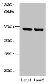 FAM46B Antibody - Western blot All lanes: TENT5B antibody at 6µg/ml Lane 1: 293T whole cell lysate Lane 2: Hela whole cell lysate Secondary Goat polyclonal to rabbit IgG at 1/10000 dilution Predicted band size: 47 kDa Observed band size: 47 kDa
