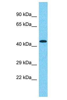 FAM47E Antibody - FAM47E antibody Western Blot of 293T. Antibody dilution: 1 ug/ml.  This image was taken for the unconjugated form of this product. Other forms have not been tested.