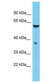 FAM47E Antibody - FAM47E antibody Western Blot of 721_B. Antibody dilution: 1 ug/ml.  This image was taken for the unconjugated form of this product. Other forms have not been tested.
