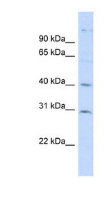 FAM50B antibody Western blot of HepG2 cell lysate. This image was taken for the unconjugated form of this product. Other forms have not been tested.