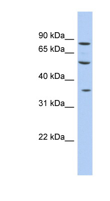 FAM63A antibody LS-C111867 Western blot of Fetal liver lysate.  This image was taken for the unconjugated form of this product. Other forms have not been tested.