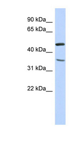 FAM81B antibody Western blot of Fetal Liver lysate. This image was taken for the unconjugated form of this product. Other forms have not been tested.