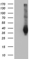 FAM84B Antibody - HEK293T cells were transfected with the pCMV6-ENTRY control (Left lane) or pCMV6-ENTRY FAM84B (Right lane) cDNA for 48 hrs and lysed. Equivalent amounts of cell lysates (5 ug per lane) were separated by SDS-PAGE and immunoblotted with anti-FAM84B.