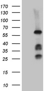 FANCC Antibody - HEK293T cells were transfected with the pCMV6-ENTRY control. (Left lane) or pCMV6-ENTRY FANCC. (Right lane) cDNA for 48 hrs and lysed. Equivalent amounts of cell lysates. (5 ug per lane) were separated by SDS-PAGE and immunoblotted with anti-FANCC. (1:2000)